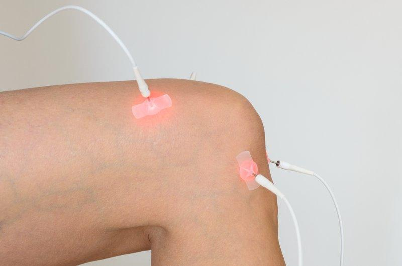 Acupuncture for Knee