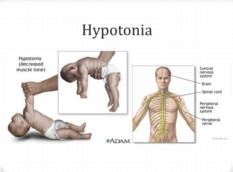 Muscle hypertonia is an increase in the rigidity of muscle tone and reduced capacity of the muscle to stretch.