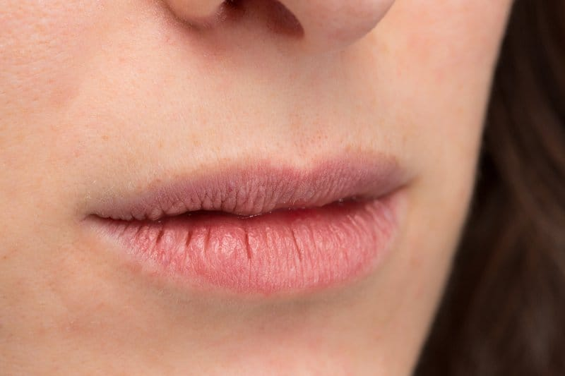 Cracked lips are a symptom of a riboflavin deficiency.