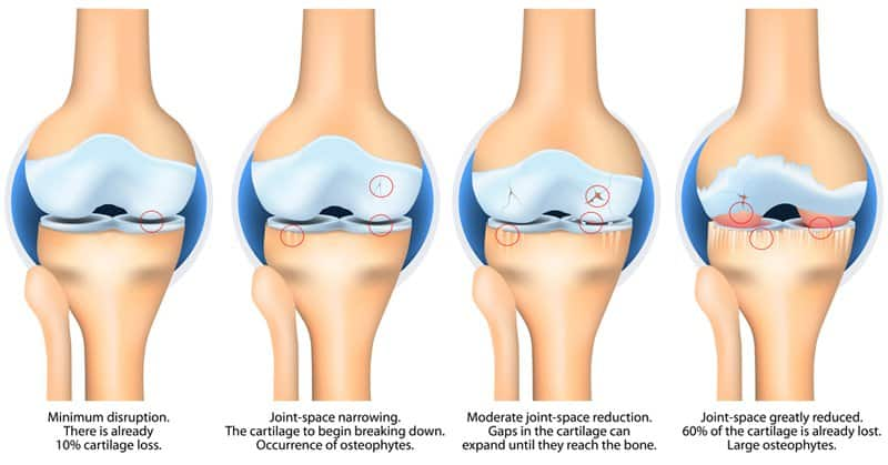 Degenerative Joint Disease has several stages.