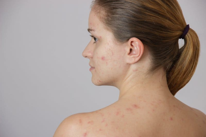 Vitamin B5 deficiency can cause acne.