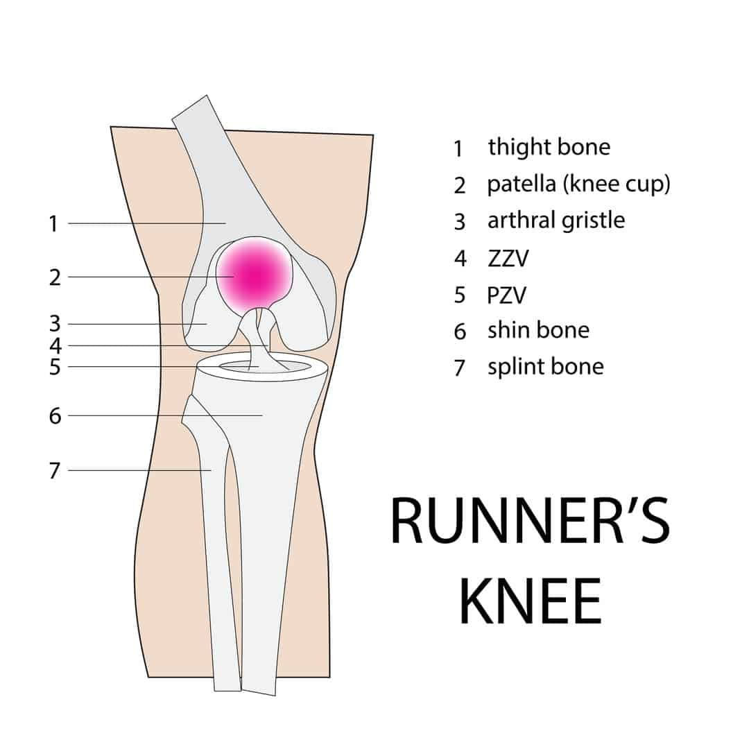 Runner's Knee: What It Is and How to Take Care of It at Home 2